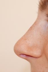 Chirurgia plastica viso, intervento di rinoplastica, caso 282 - Dopo