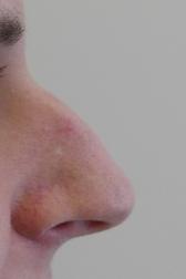 Chirurgia plastica viso, intervento di rinoplastica, caso 283 - Prima