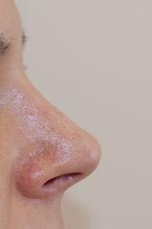Chirurgia plastica viso, intervento di rinoplastica, caso 283 - Dopo