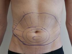 Chirurgia plastica addome, intervento di vibroliposcultura - addome, caso 284 - Prima