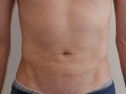 Chirurgia plastica addome, intervento di vibroliposcultura - addome, caso 284 - Dopo