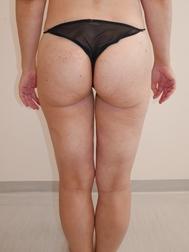 Chirurgia plastica gambe e glutei, intervento di vibroliposcultura - gambe e glutei, caso 286 - Dopo