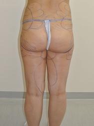 Chirurgia plastica gambe e glutei, intervento di vibroliposcultura - gambe e glutei, caso 287 - Prima