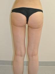 Chirurgia plastica gambe e glutei, intervento di vibroliposcultura - gambe e glutei, caso 287 - Dopo