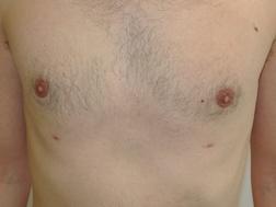 Chirurgia plastica seno, intervento di ginecomastia, caso 289 - Dopo