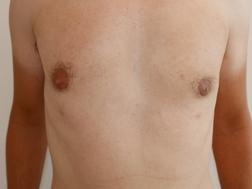 Chirurgia plastica seno, intervento di ginecomastia, caso 288 - Dopo