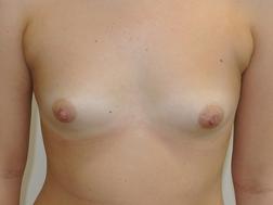 Chirurgia plastica seno, intervento di mastoplastica additiva, caso 290 - Prima
