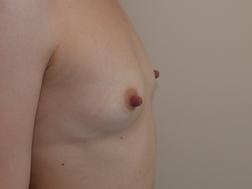 Chirurgia plastica seno, intervento di mastoplastica additiva, caso 292 - Prima